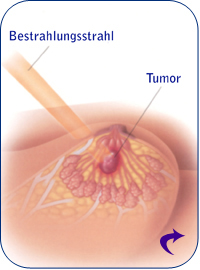 Bestrahlung des Tumors